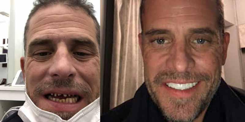 Hunter Bidens new teeths